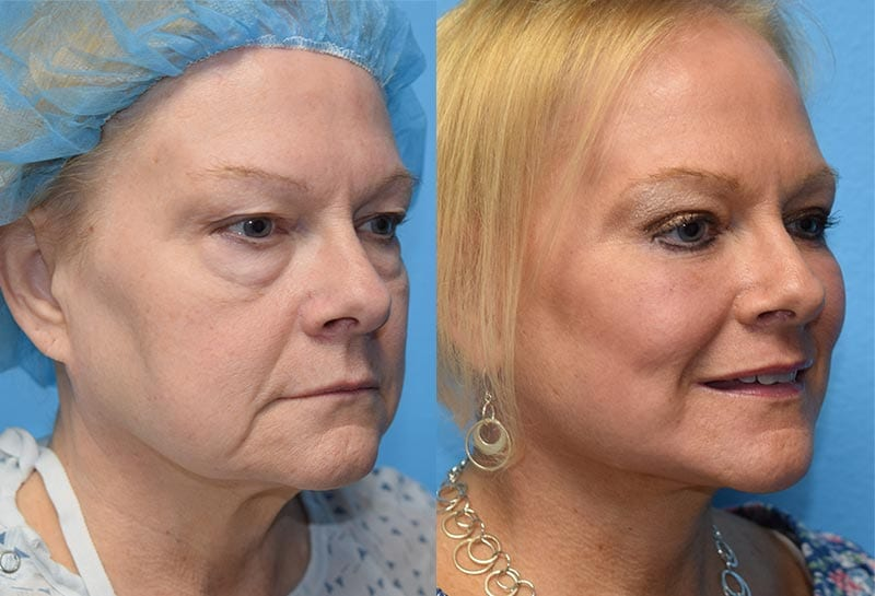 maningas-cosmetic-surgery-joplin-mo-gallery-test-image
