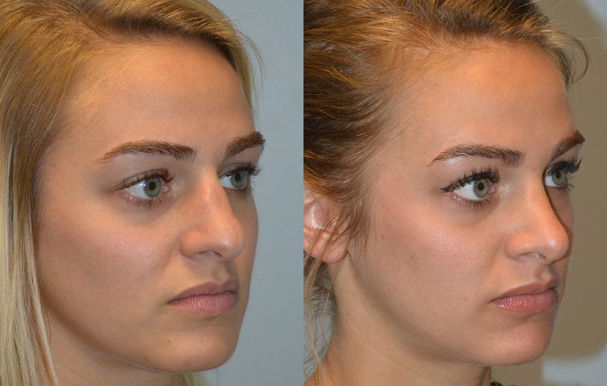 Nose reshaping results at Maningas Cosmetic Surgery in Joplin, MO and Northwest Arkansas