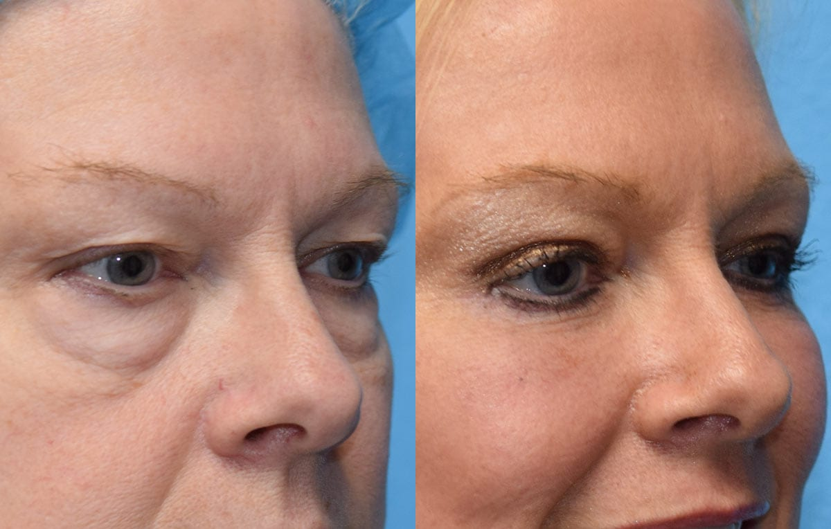 Lower Lid Results from Maningas Cosmetic Surgery in Joplin, MO and Northwest Arkansas