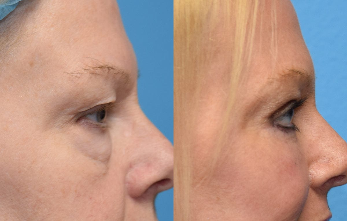 Eyelid surgery results at Maningas Cosmetic Surgery in Joplin, MO and Northwest Arkansas