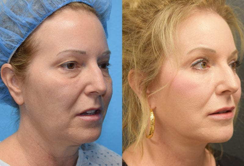 Facelift results at Maningas Cosmetic Surgery in Joplin, MO and Northwest Arkansas