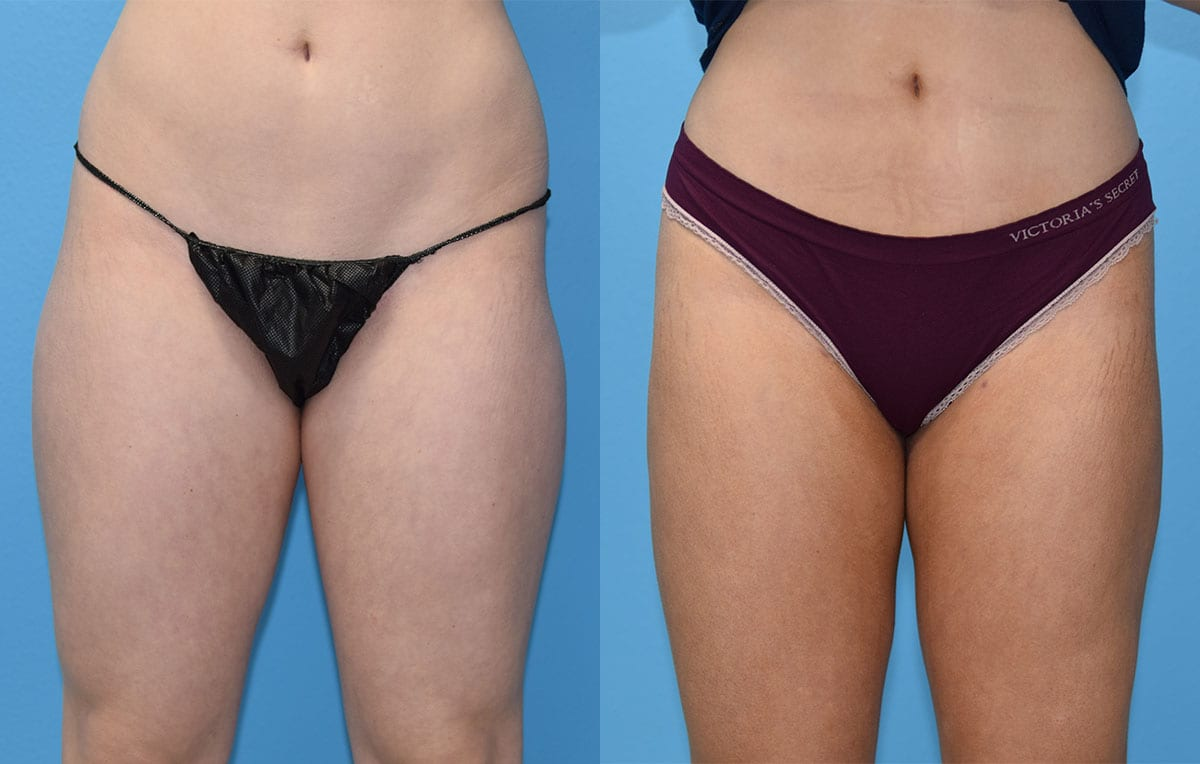 Liposuction of the inner and outer thighs with fat transfer to hip-dips at Maningas Cosmetic Surgery in Joplin, MO