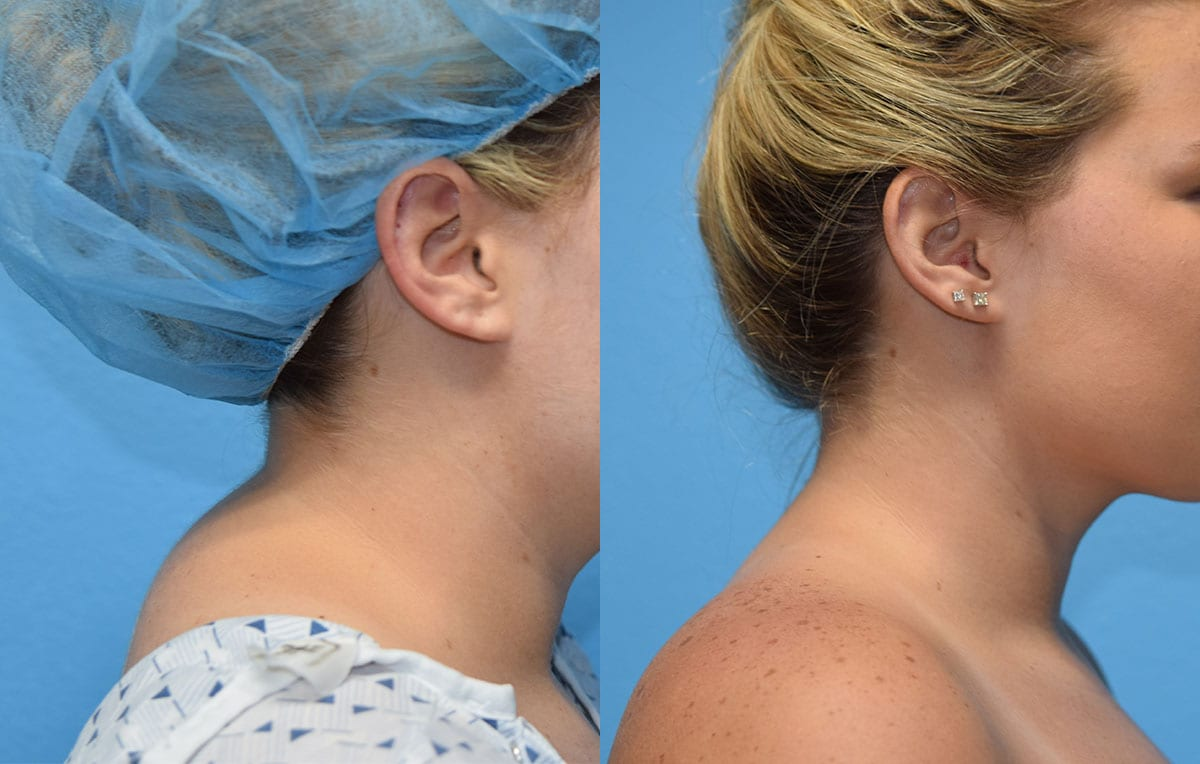 Liposuction to remove buffalo hump at Maningas Cosmetic Surgery in Joplin, MO