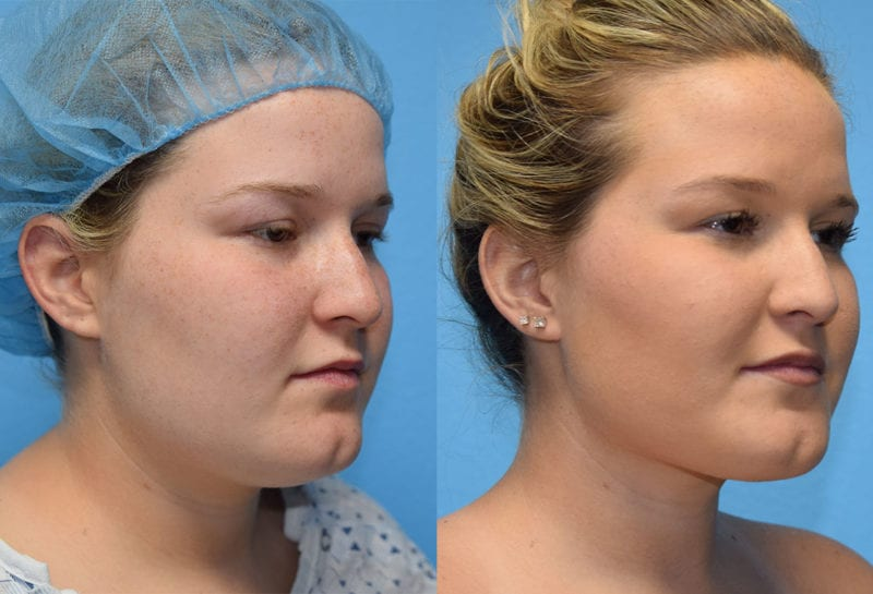 Liposuction for facial contouring of the neck and jaw at Maningas Cosmetic Surgery in Joplin, MO