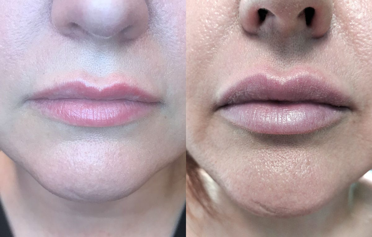 Lip Filler in Joplin, MO at Maningas Cosmetics Surgery