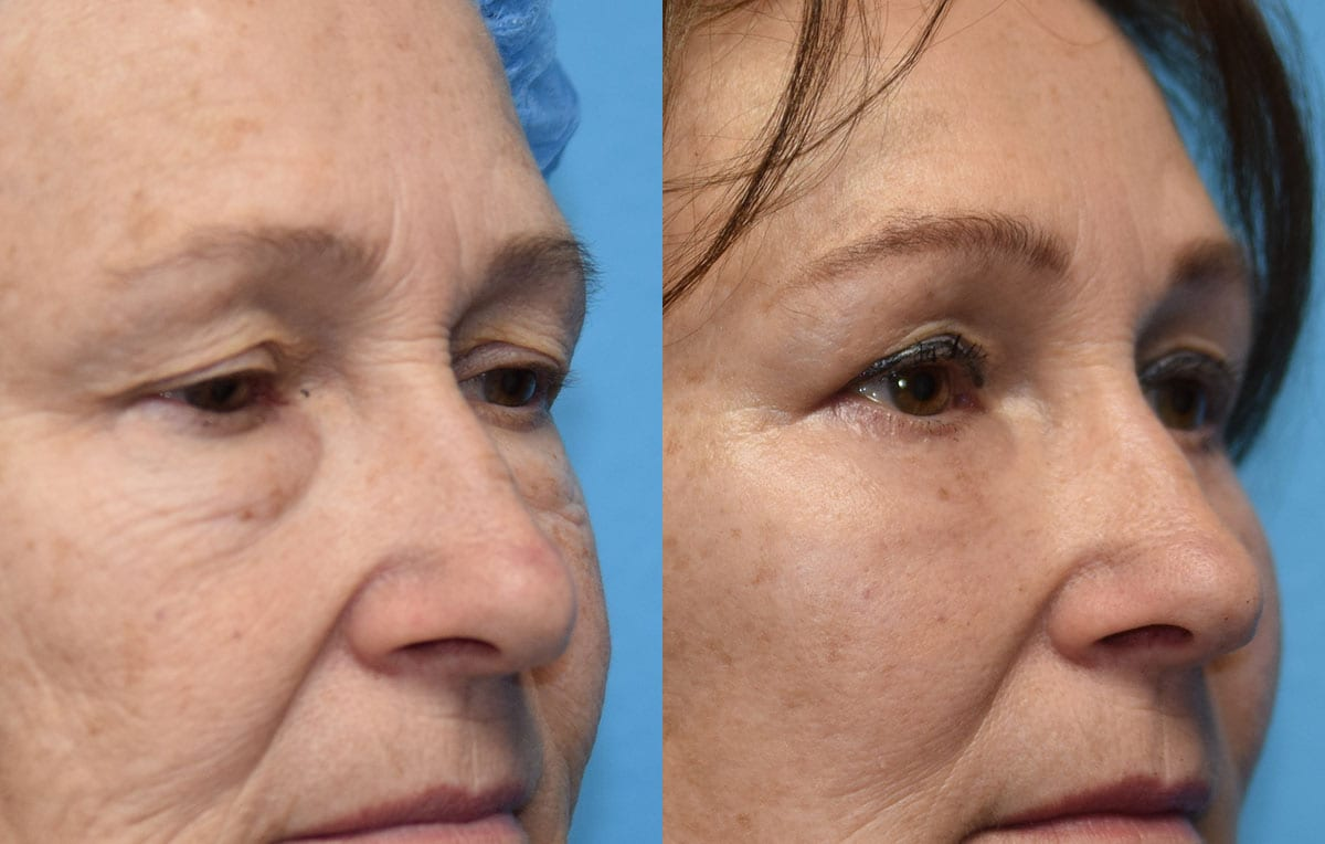 Eyelid and Brow Lift surgery results at Maningas Cosmetic Surgery in Joplin, MO and Northwest Arkansas
