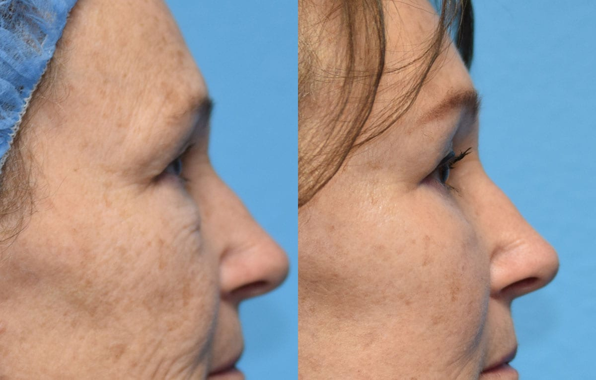 Eyelid and Brow Lift results at Maningas Cosmetic Surgery in Joplin, MO and Northwest Arkansas