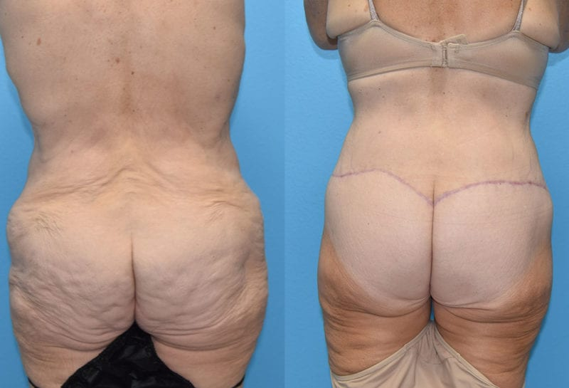 Body Lift results by Dr. Maningas at Maningas Cosmetic Surgery in Joplin, MO