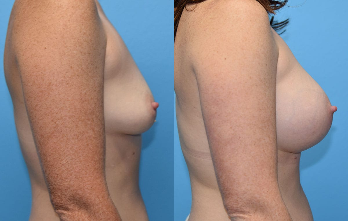 breast augmentation results by dr. maningas at maningas cosmetic surgery in joplin, mo