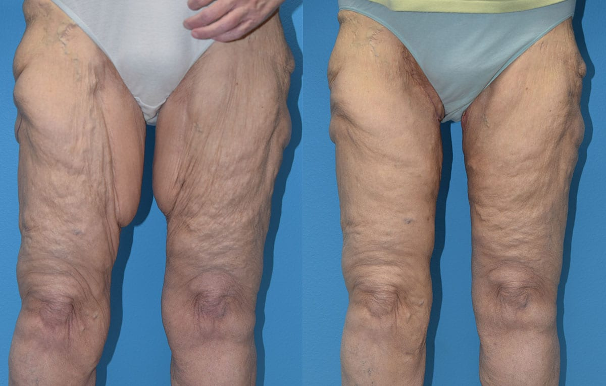 Inner Thigh Lift by Dr. Maningas at Maningas Cosmetic Surgery in Joplin, MO