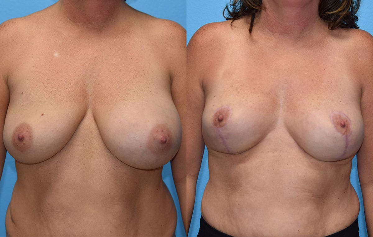 breast reduction results by Dr. Maningas as Maningas Cosmetic Surgery