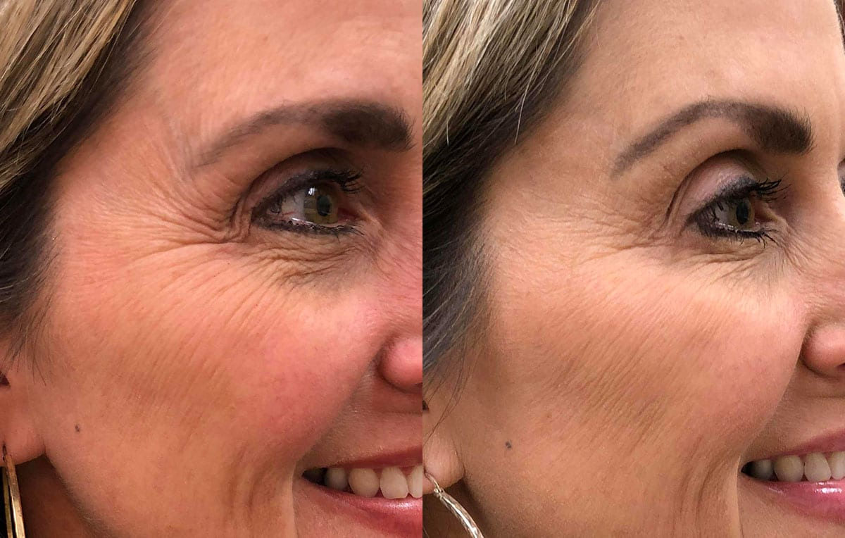 Botox Results in Joplin at Maningas Cosmetic Surgery by Nurse Beth