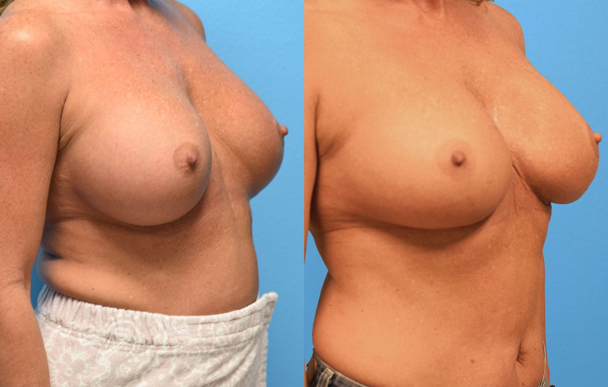 Cosmetic breast revision results by Dr. Maningas at Maningas Cosmetic Surgery in Missouri and Arkansas