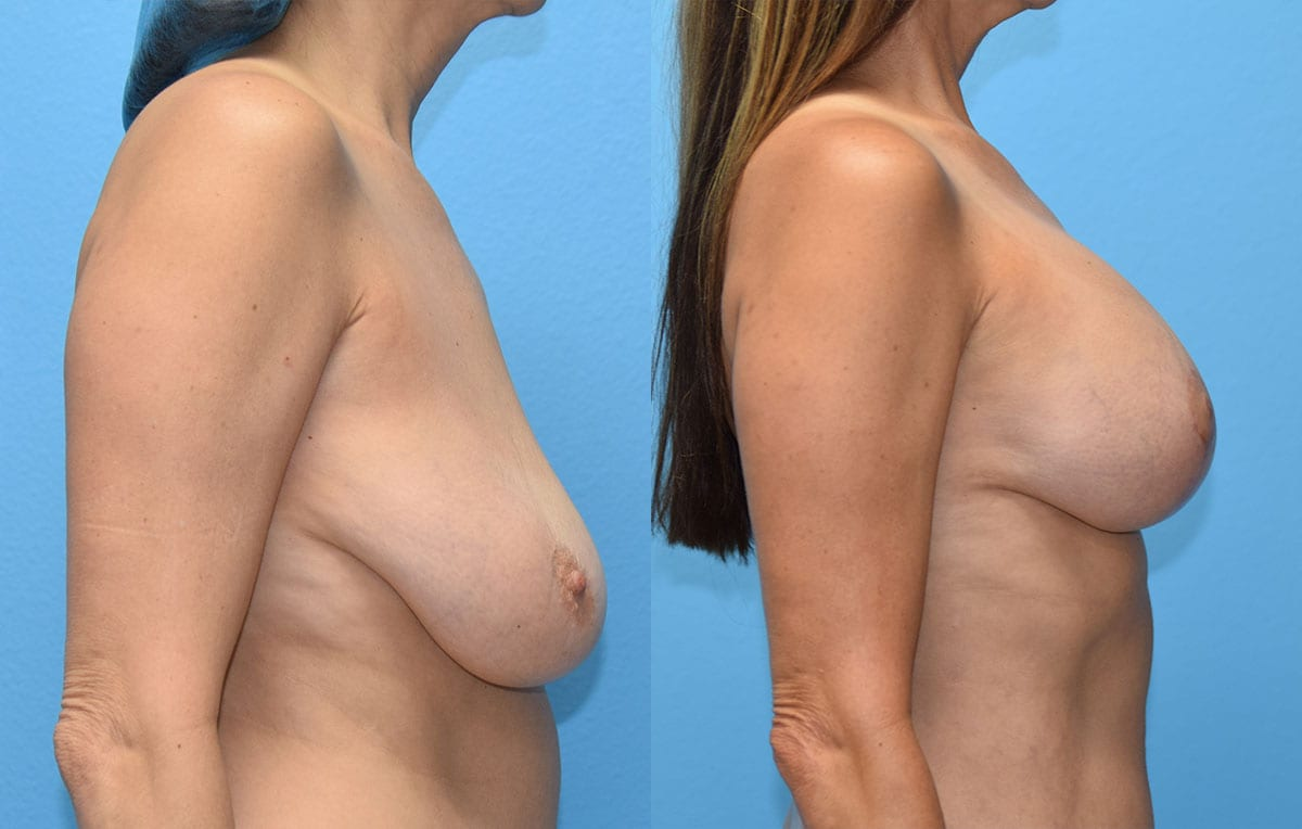 Breast Lift with Implant results by Dr. Maningas at Maningas Cosmetic Surgery in Missouri and Arkansas