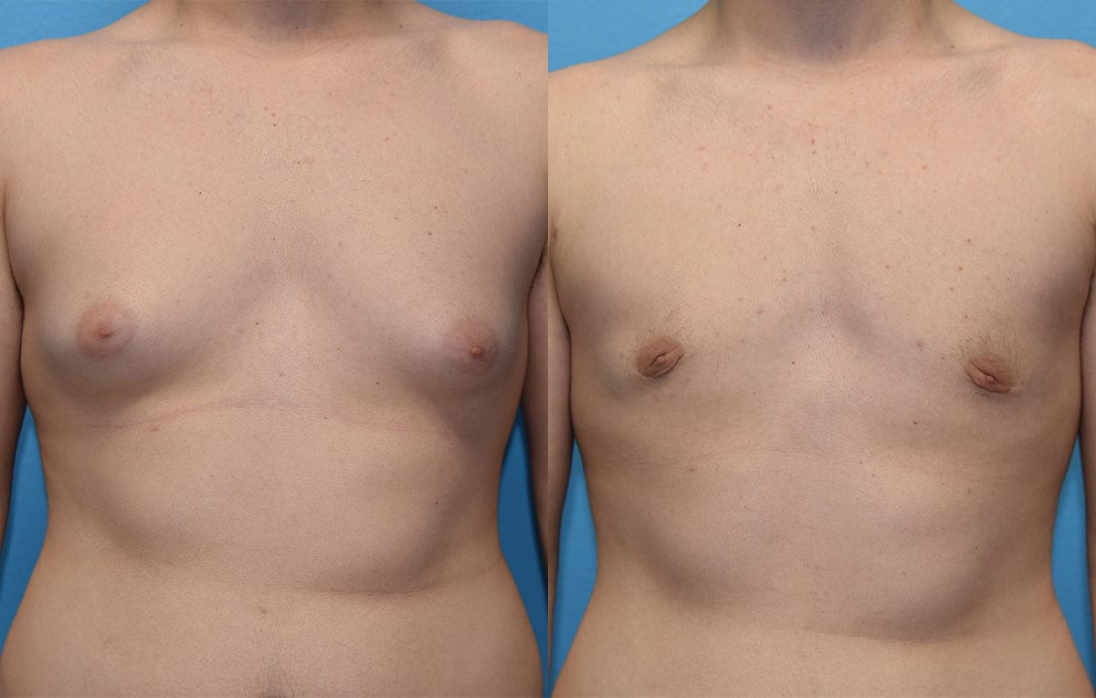 Gynecomastia Repair, or Male Breast Reduction, results by Dr. Maningas at Maningas Cosmetic Surgery in Joplin, MO and Northwest Arkansas