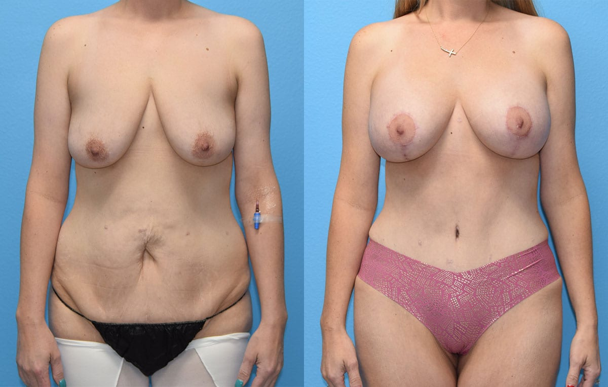 Mommy Makeover results by Dr. Maningas at Maningas Cosmetic Surgery in Joplin, MO