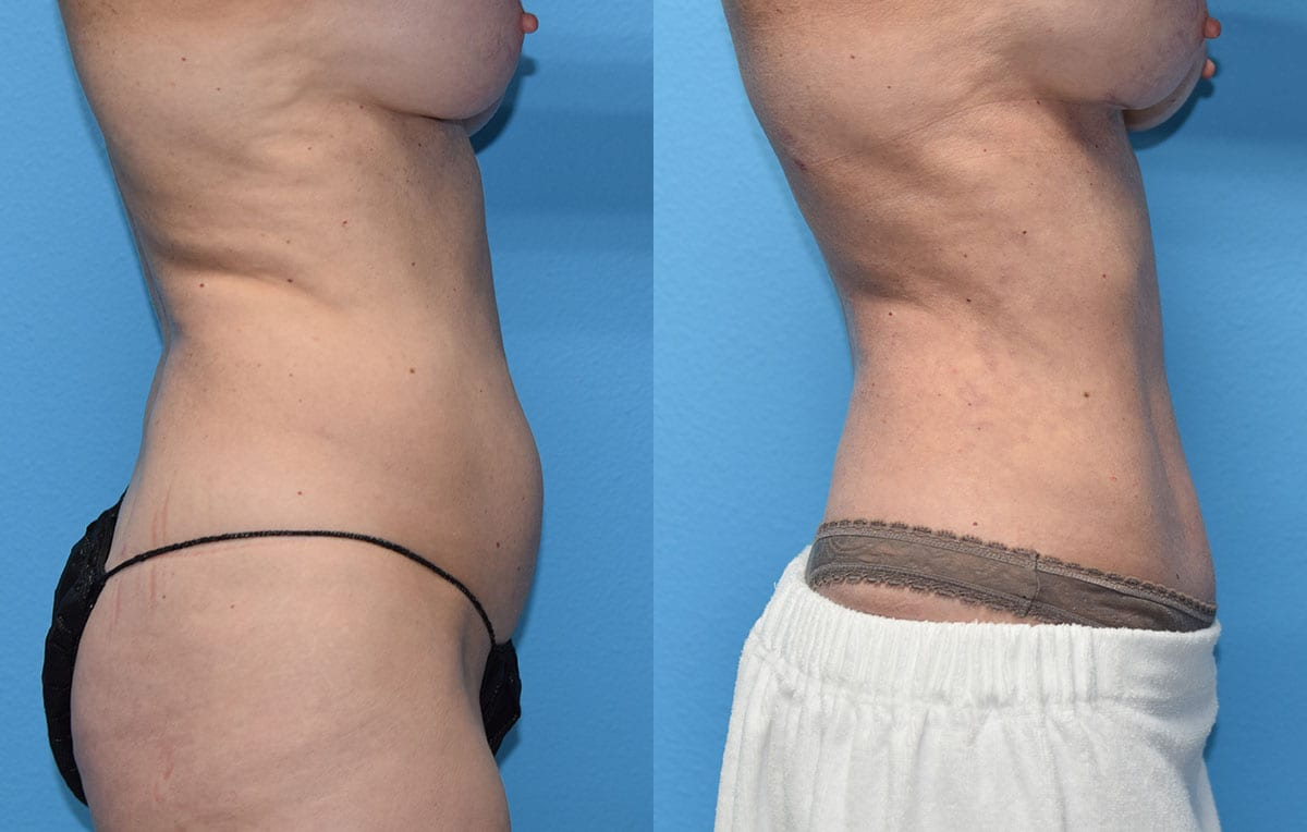 Mini Tummy Tuck results by Dr. Maningas at Maningas Cosmetic Surgery in Joplin, MO and Northwest Arkansas.