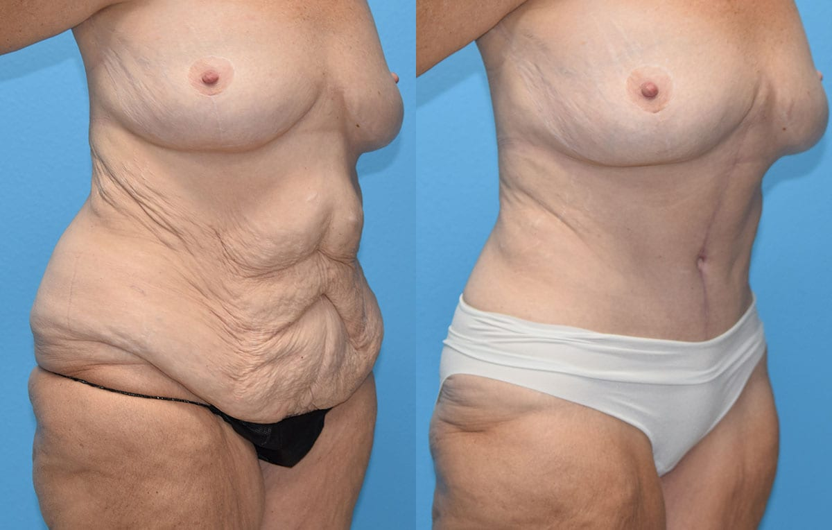 Fleur-de-lis Tummy tuck results by Dr. Maningas at Maningas Cosmetic Surgery in Joplin, MO