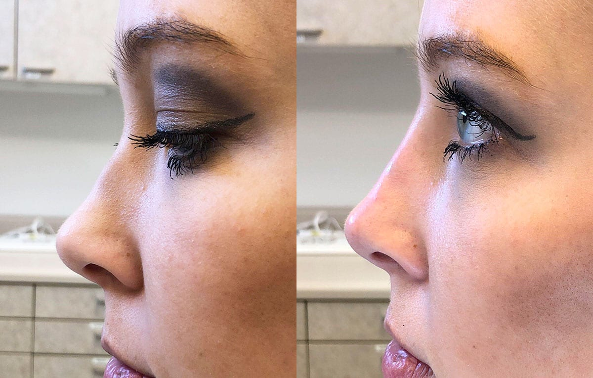 Liquid Rhinoplasty results at Maningas Cosmetic Surgery in Joplin, MO