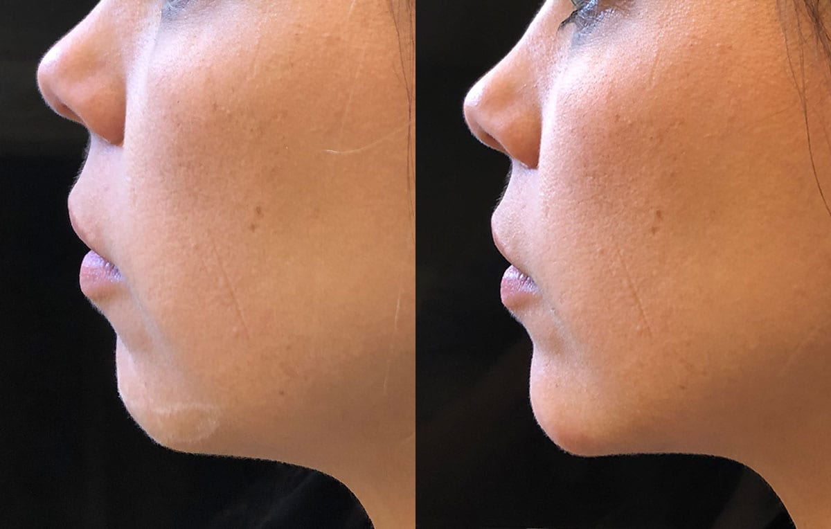 Chin filler results at Maningas Cosmetic Surgery in Joplin, MO
