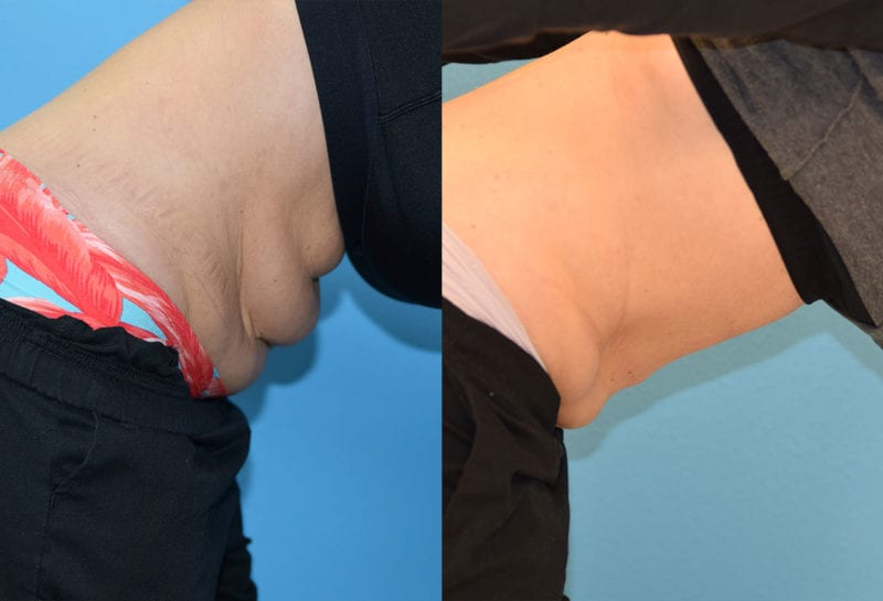 Bodytite to the upper and lower tummy results at Maningas Cosmetic Surgery in Joplin, MO