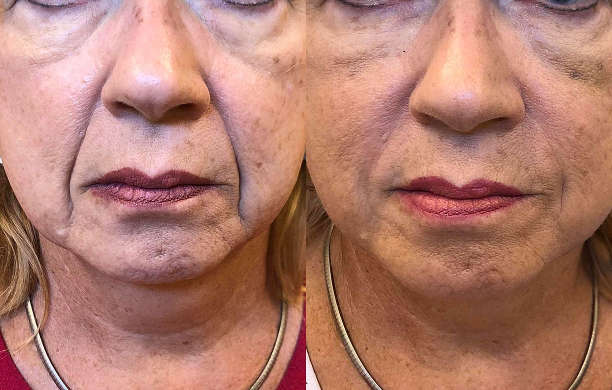 Lower Mouth Filler Results at Maningas Cosmetic Surgery in Joplin, MO