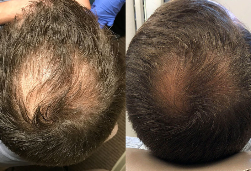 PRP injections for hair loss at Maningas Cosmetic Surgery in Joplin, MO