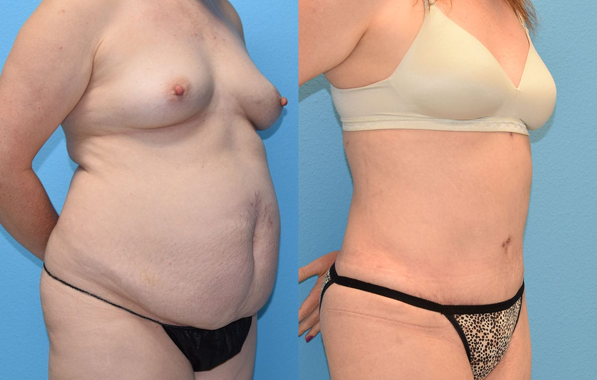 Tummy tuck results by Dr. Maningas at Maningas Cosmetic Surgery in Joplin, MO