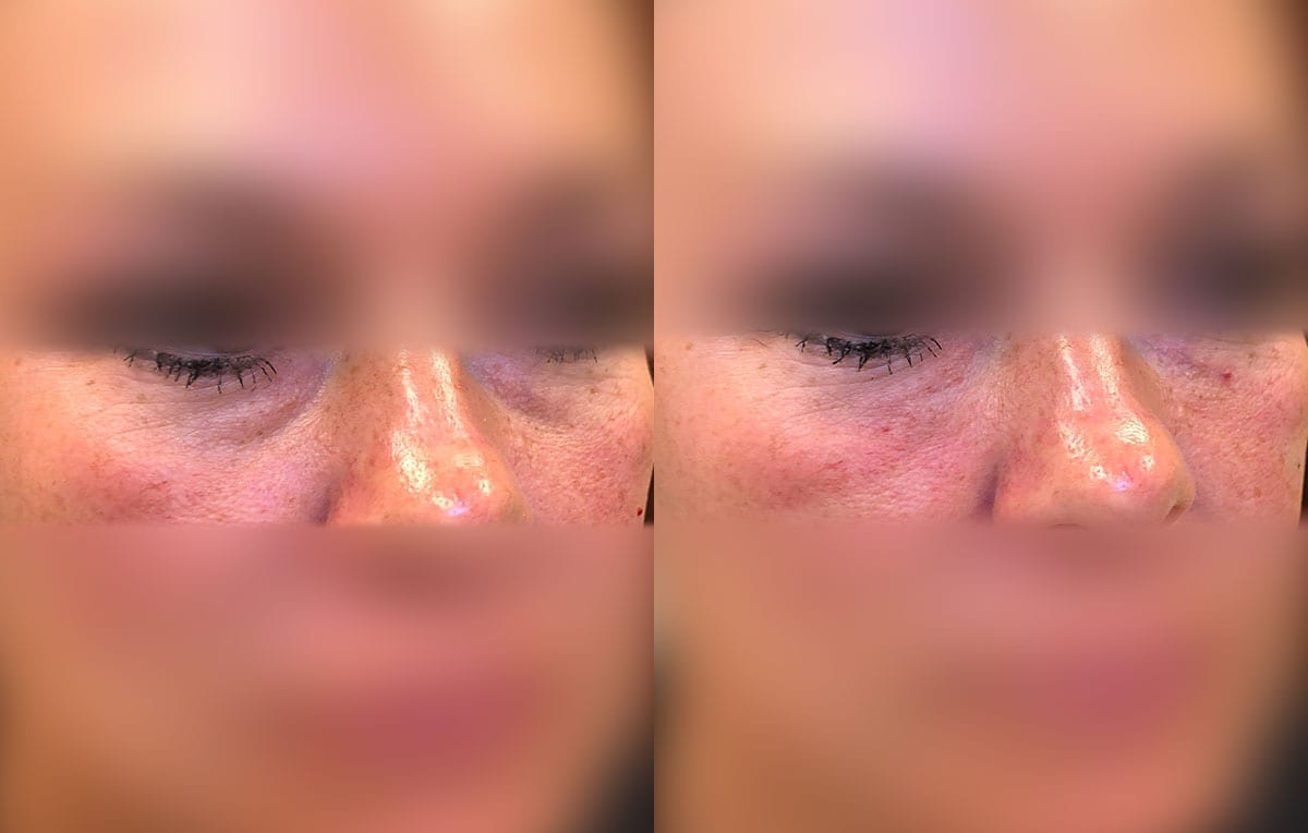 Tear Trough, Lower Lid, Filler Results at Maningas Cosmetic Surgery in Joplin, MO