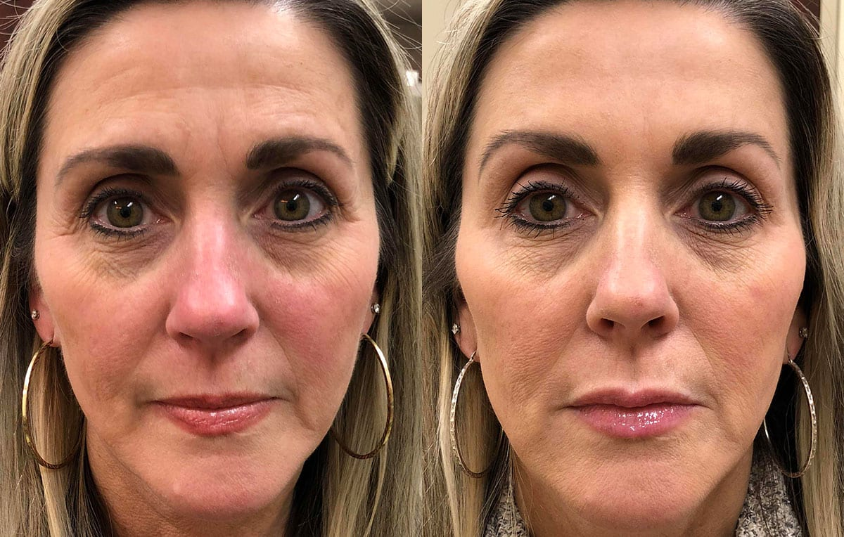Non-Surgical Liquid facelift results at Maningas Cosmetic Surgery in Joplin, MO