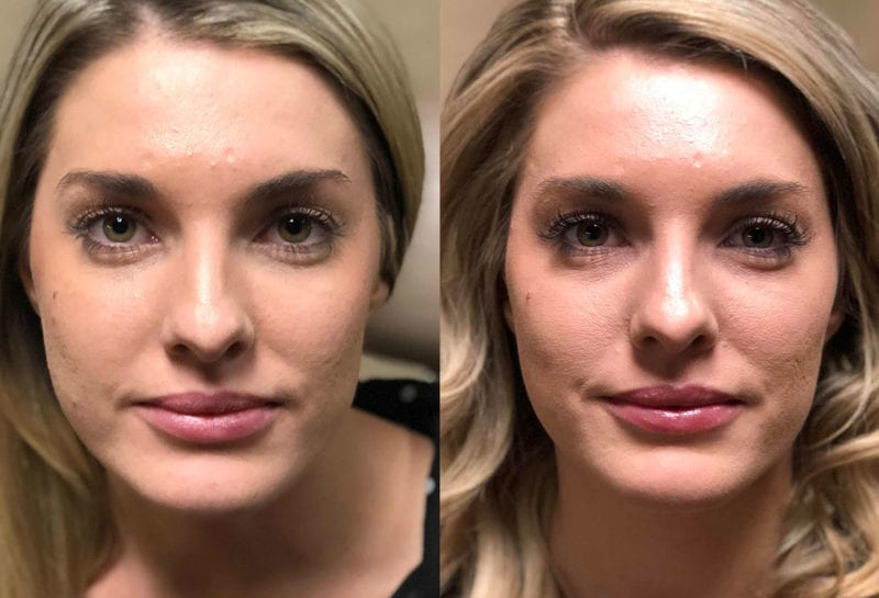 Cheek Filler Results at Maningas Cosmetic Surgery in Joplin, MO
