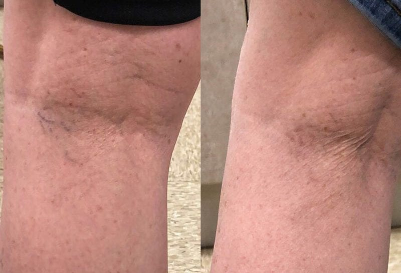 Sclerotherapy, or sider vein treatment, in Joplin, MO at Maningas Cosmetic Surgery to permanently remove small to medium sized leg spider veins