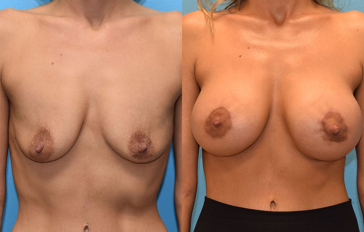 Benelli Breast Lift with Implant results by Dr. Maningas at Maningas Cosmetic Surgery in Missouri and Arkansas