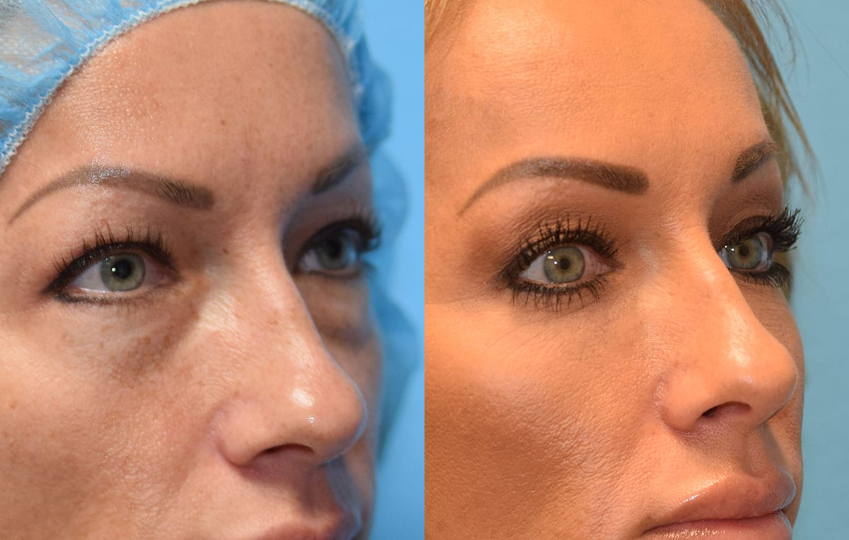Lower eyelid surgery to remove under eye bags at Maningas Cosmetic Surgery in Joplin, MO and Northwest Arkansas
