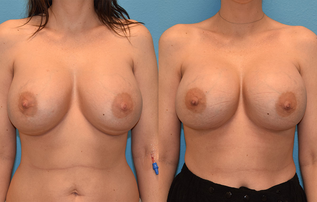 Breast implant exchange by Dr. Maningas at Maningas Cosmetic Surgery in Joplin, MO