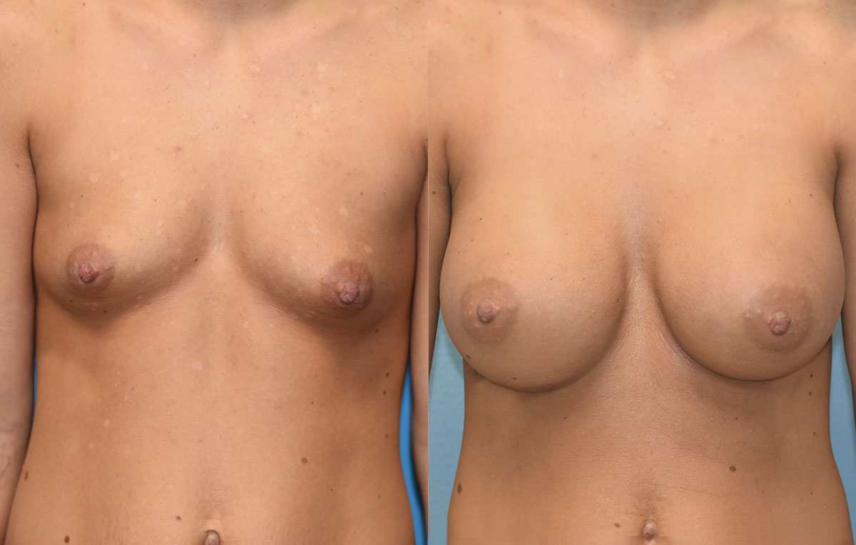 Breast augmentation results by Dr. Maningas at Maningas Cosmetic Surgery in Missouri and Arkansas