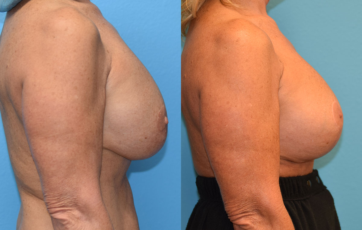 Breast augmentation with a lift results by Dr. Maningas at Maningas Cosmetic Surgery in Missouri and Arkansas