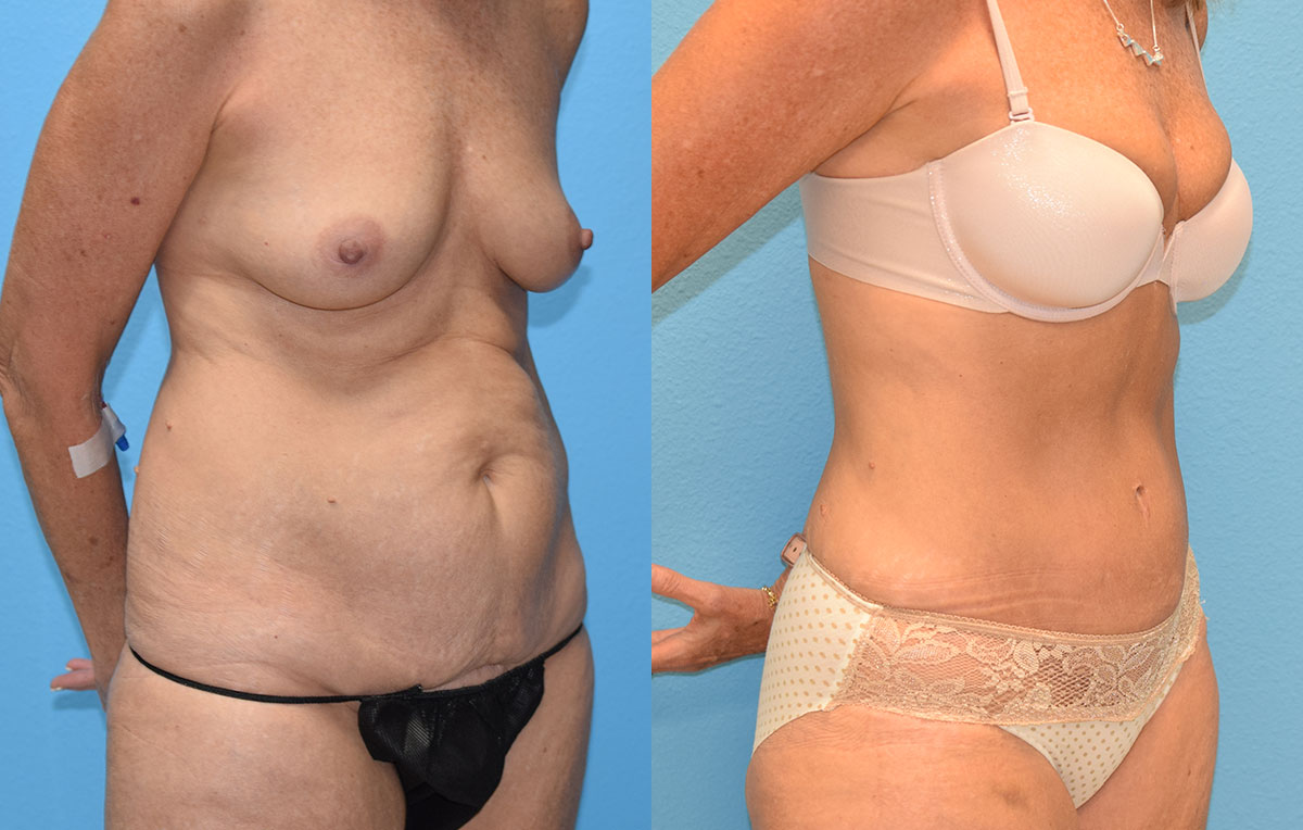 Tummy Tuck results by Dr. Maningas at Maningas Cosmetic Surgery in Missouri and Arkansas