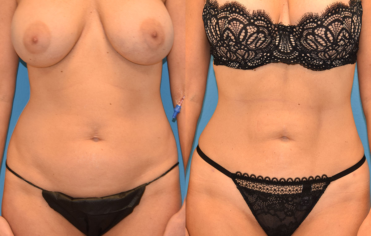 Skin Tightening and Liposuction results at Maningas Cosmetic Surgery in Joplin, MO