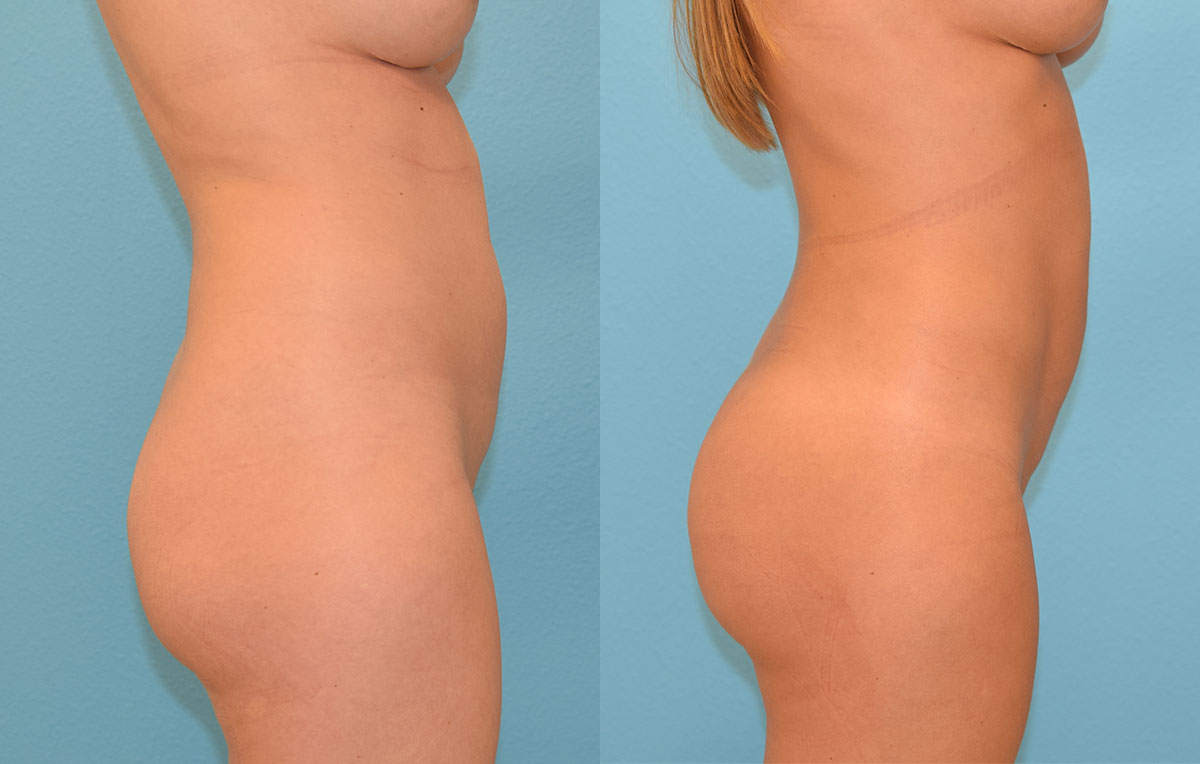 Brazilian Butt Lift by Dr. Maningas at Maningas Cosmetic Surgery in Joplin, MO