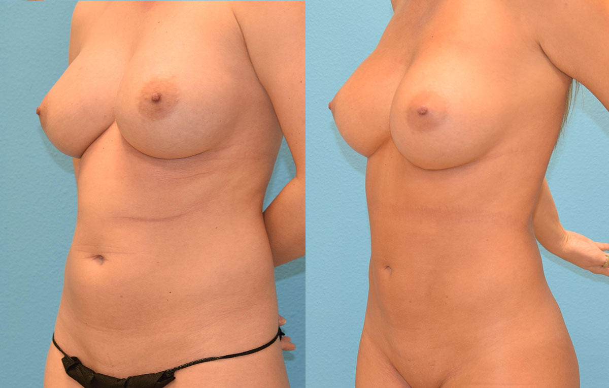 Liposuction Results by Dr. Maningas at Maningas Cosmetic Surgery in Joplin, MO