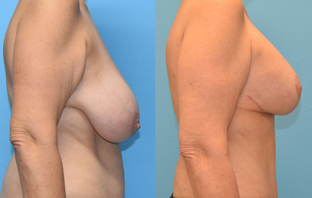 Breast lift with implants surgery by Dr. Maningas at Maningas Cosmetic Surgery in Joplin, MO