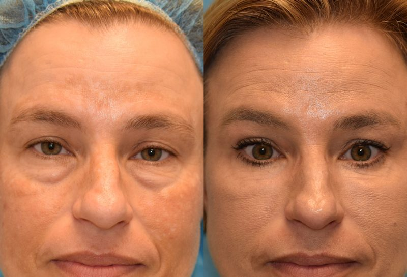Eyelid Lift and CO2 Laser Resurfacing results at Maningas Cosmetic Surgery in Joplin, MO and Northwest Arkansas