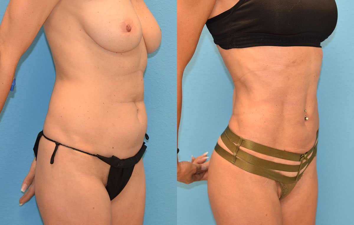 Skin Tightening with BodyTite and Liposuction results at Maningas Cosmetic Surgery in Joplin, MO