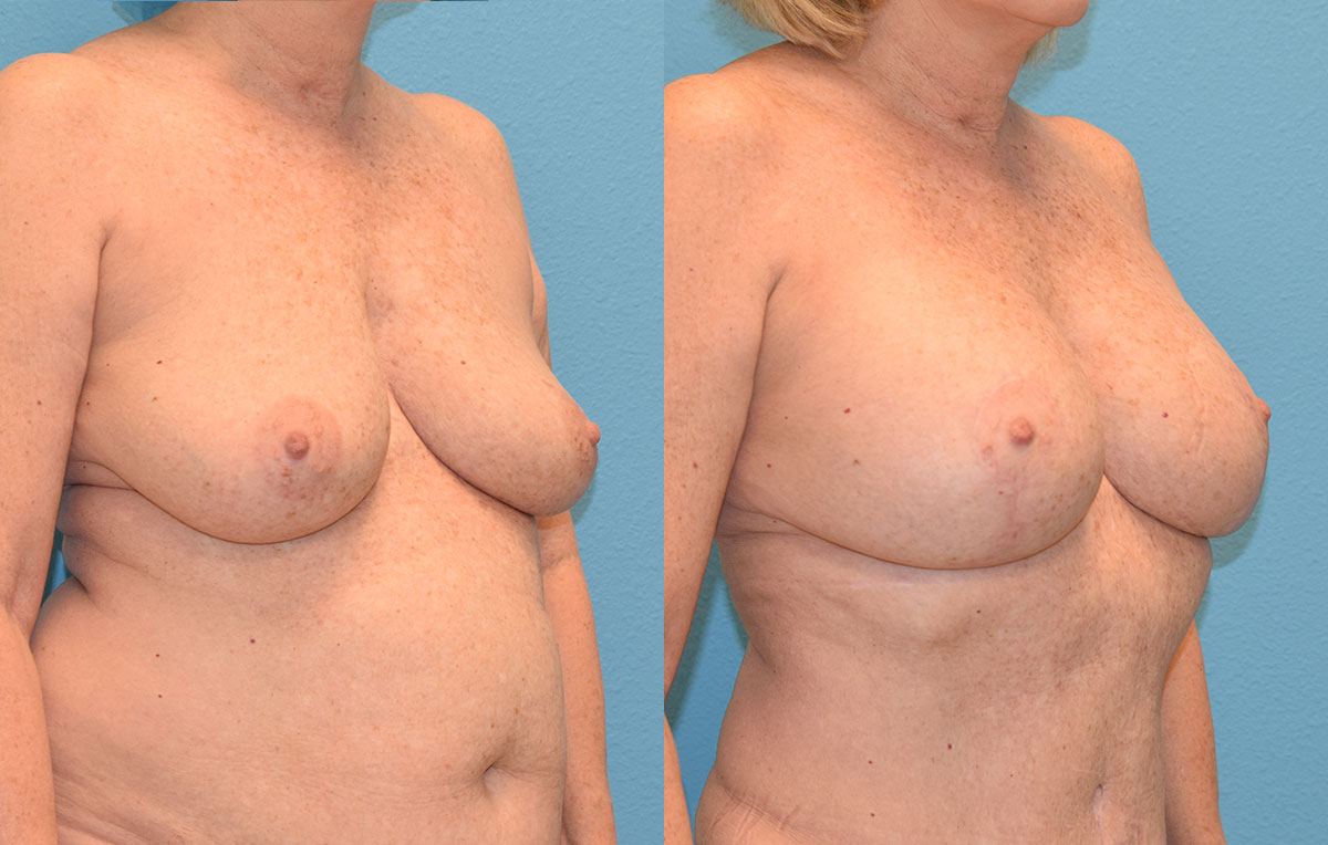 Breast Lift with Implants results by Dr. Maningas as Maningas Cosmetic Surgery