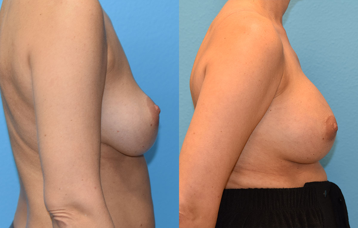 Breast implant exchange with a pocket transition from above to below the muscle. Result by Dr. Maningas, triple board certified cosmetic surgeon in Joplin, MO