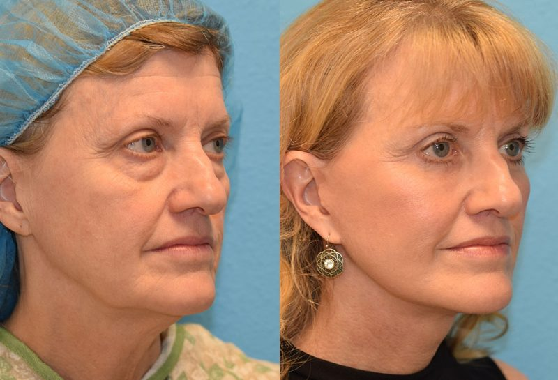 Facelift, Eyelid Surgery and CO2 laser results at Maningas Cosmetic Surgery in Joplin, MO and Northwest Arkansas