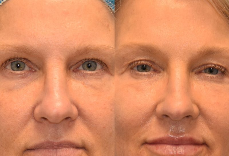 Non-surgical lower blepharoplasty with accutit. Minimally invasive procedure by Dr. Maningas in Joplin, MO