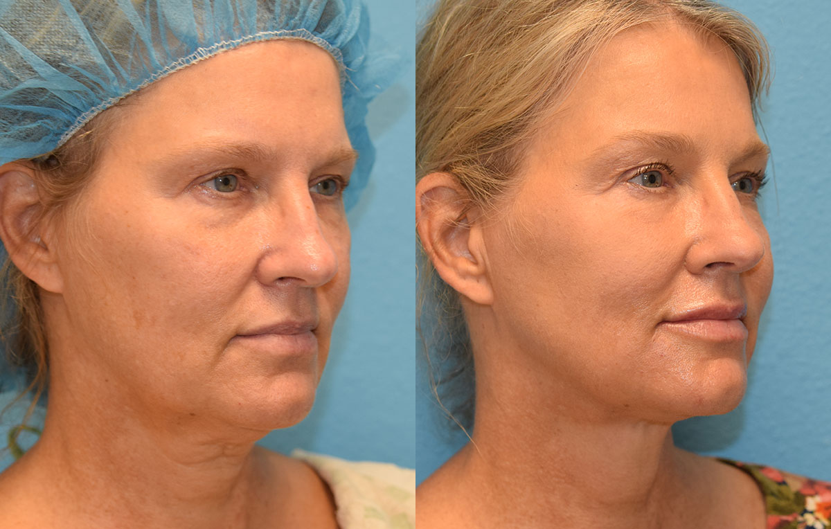 Non-surgical lower blepharoplasty and mini facelift with accutite and Facetite. Minimally invasive procedure by Dr. Maningas in Joplin, MO