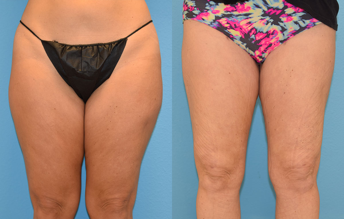Bodytite, skin tightening and fat reduction, to the thighs by Dr. Maningas in Joplin, MO